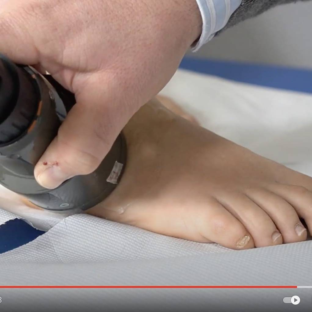 distorsione caviglia ultrasuoni